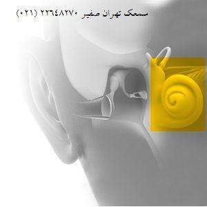 کم شنوایی حسی– عصبی