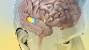درمان قطعی وزوز گوش غیرمزمن