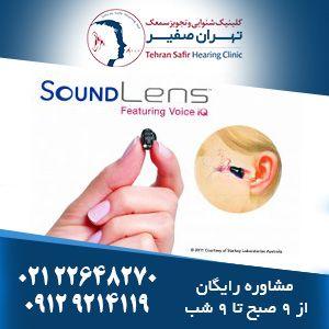 سمعک استارکی Sound Lens