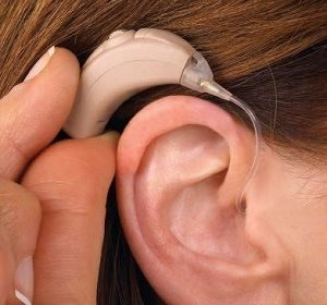 کاشت حلزون گوش