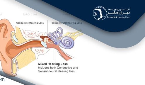 اختلال شنوایی چیست