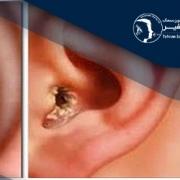 التهاب گوش