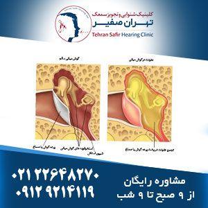 درمان التهاب گوش